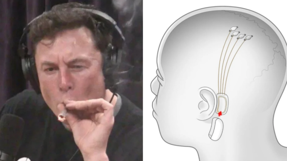 elon-musk-stream-music-brain-chip-implant-neuralink