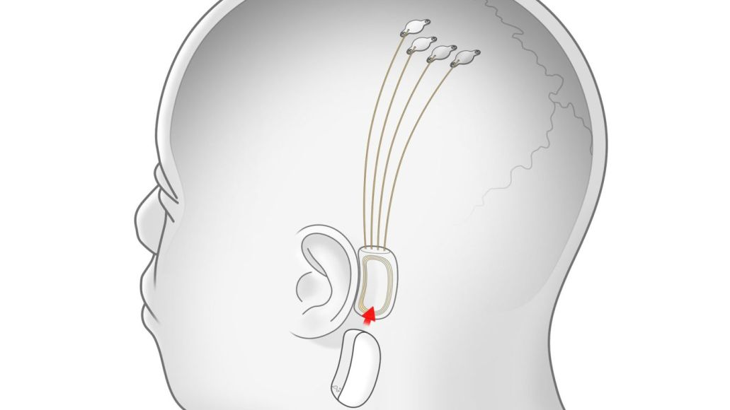 neuralink-brain-chip-implant