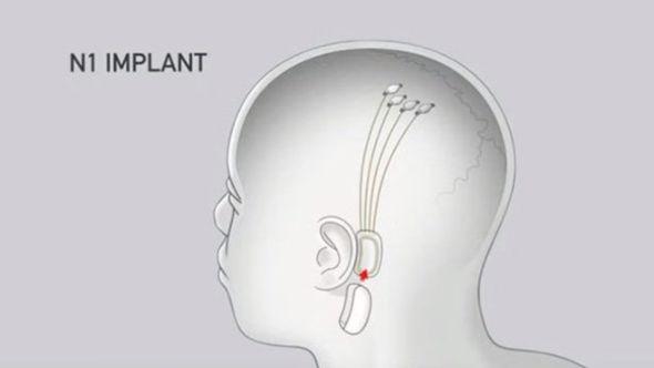 Neuralink brain chip